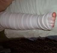 bandaging-image